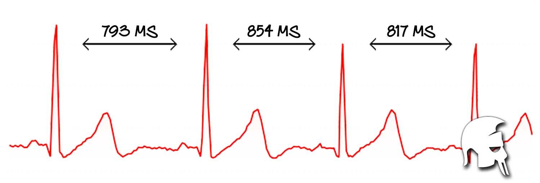 Herzfrequenzvariablität Krafttraining